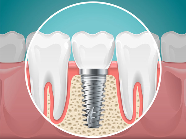 Diagram of a tooth replaced with a dental implant from Rogue Valley Dental Center in Medford, OR